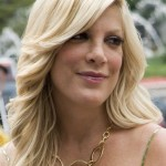 Tori Spelling Plastic Surgery Before and After