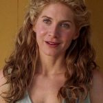 Elizabeth Mitchell Plastic Surgery Before and After