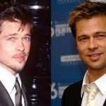 Brad Pitt Plastic Surgery Before and After
