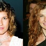Connie Britton Plastic Surgery Before and After