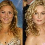 Elisabeth Röhm Plastic Surgery Before and After