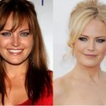 Malin Åkerman Plastic Surgery Before and After