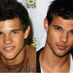 Taylor Lautner Plastic Surgery Before and After