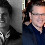 Matt Damon Plastic Surgery Before and After