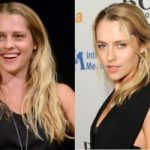 Teresa Palmer Plastic Surgery Before and After