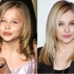 Chloë Grace Moretz Plastic Surgery Before and After