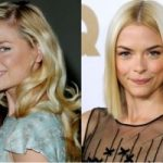 Jaime King Plastic Surgery Before and After