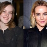 Jena Malone Plastic Surgery Before and After