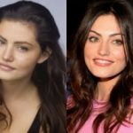 Phoebe Tonkin Plastic Surgery Before and After