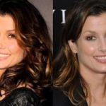 Bridget Moynahan Plastic Surgery Before and After